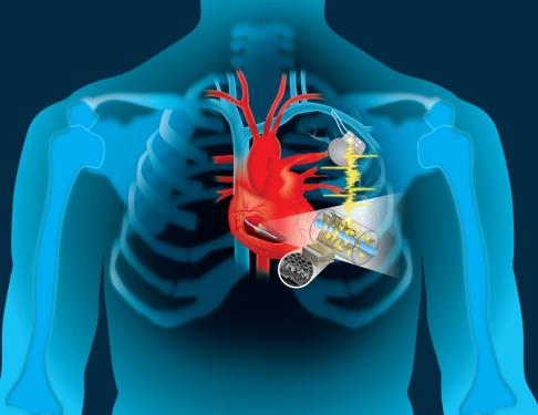 human_heart_implantable_devices