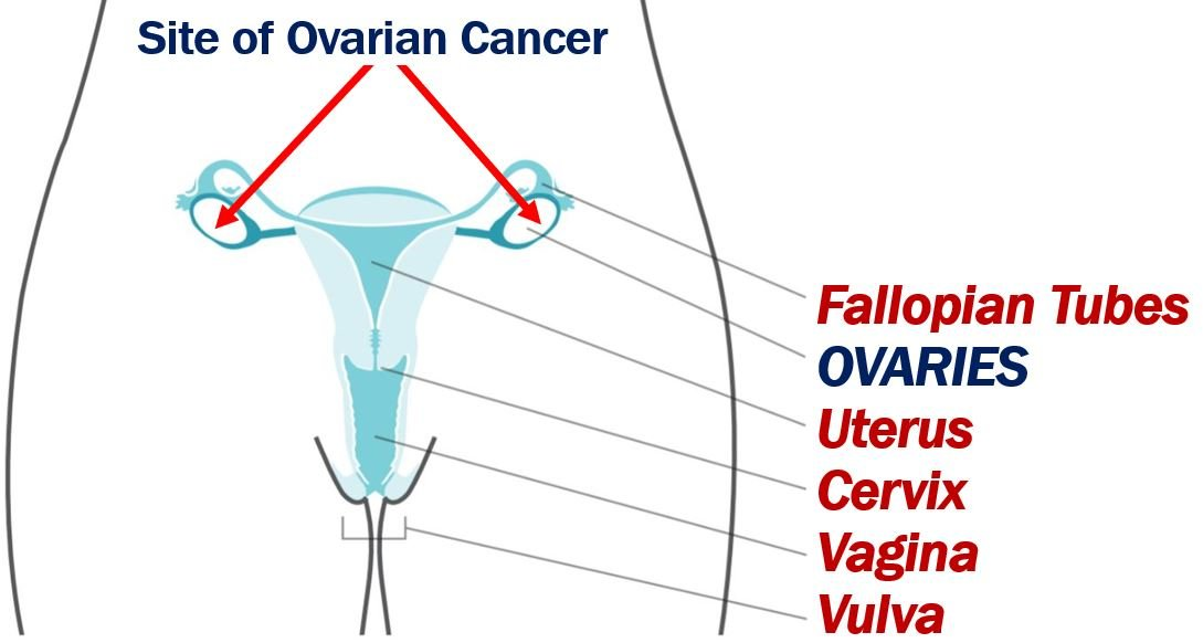 Ovarian cancer and AI article - image 1