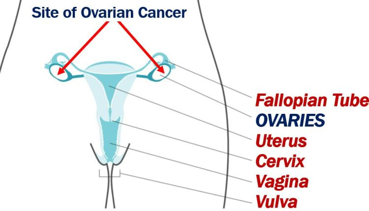 Ovarian cancer and AI article – image 1
