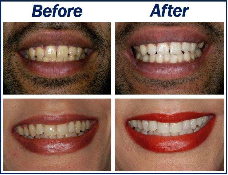 Stained Teeth Image 3323333