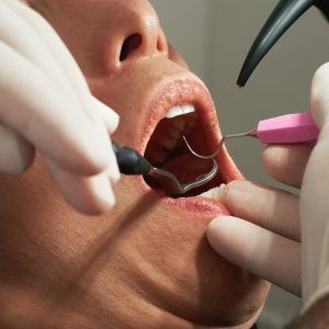 6 Truths You Should Know About Wisdom Tooth Extraction