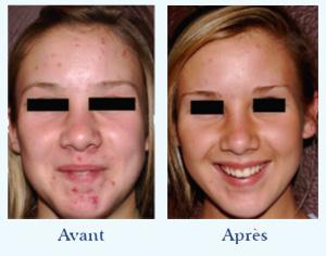 Débarrassez vous de votre acné grâce à la lumière pulsée