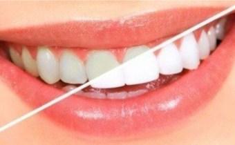Blanchiment de dents  en cabinet dentaire