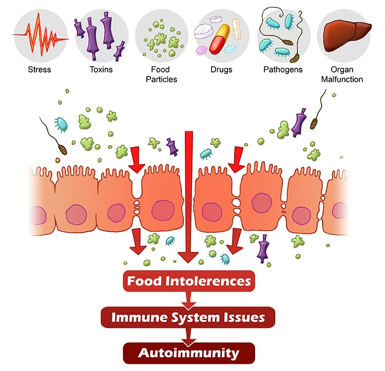 mat som läker tarmen