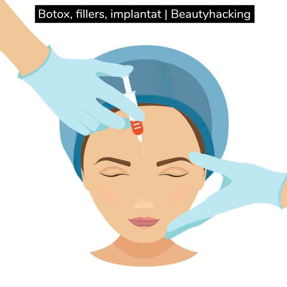 Botox, fillers, implantat | Beautyhacking
