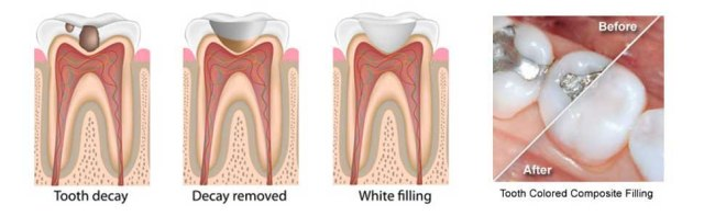 dental fillings and restorations