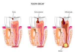 tooth_decay_abscess