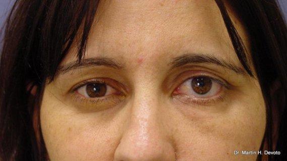 Parálisis facial izquierda