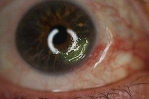 ulcera corneal