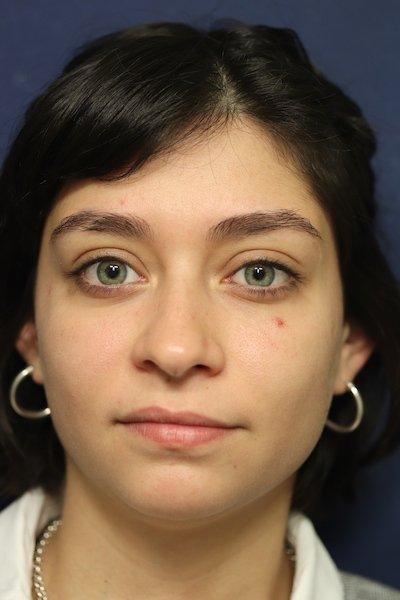 Enfermedad Tiroidea Ocular 4