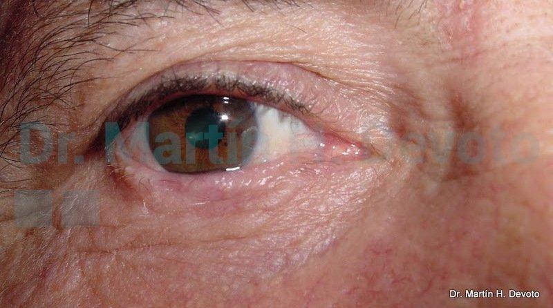 cancer de piel case 6_3