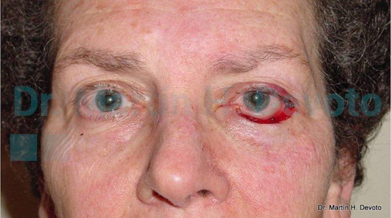 cancer de piel case 7_1