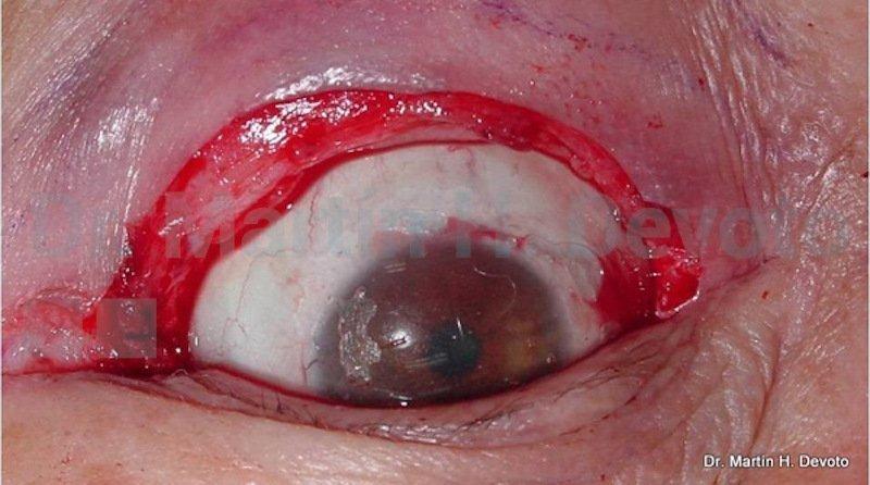 cancer de piel case 9_3