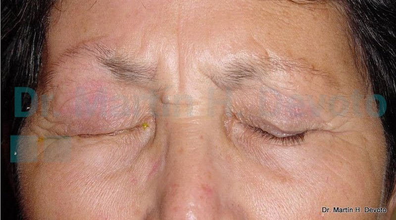 cancer de piel case 9_5