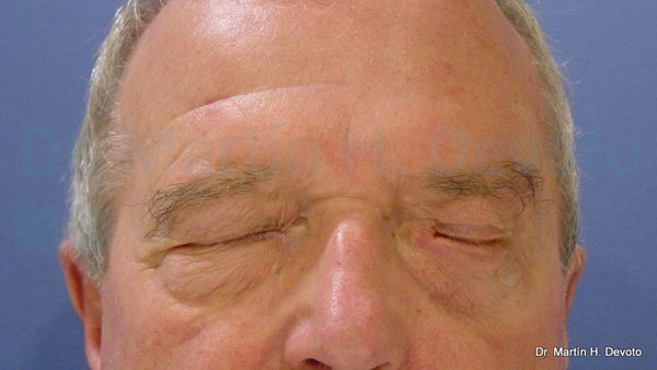 paralisis facial 12