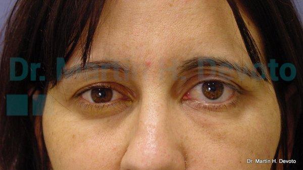 paralisis facial 13