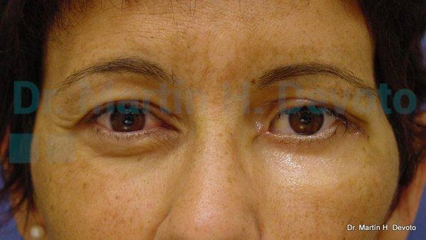 paralisis facial 17