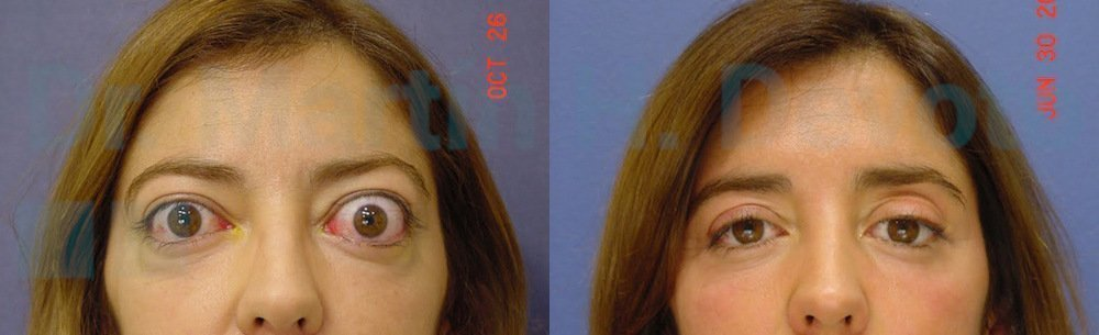 tiroides y ojos 5