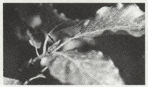L75-7