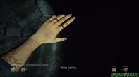 O que são as marcas no braço de Sarah?