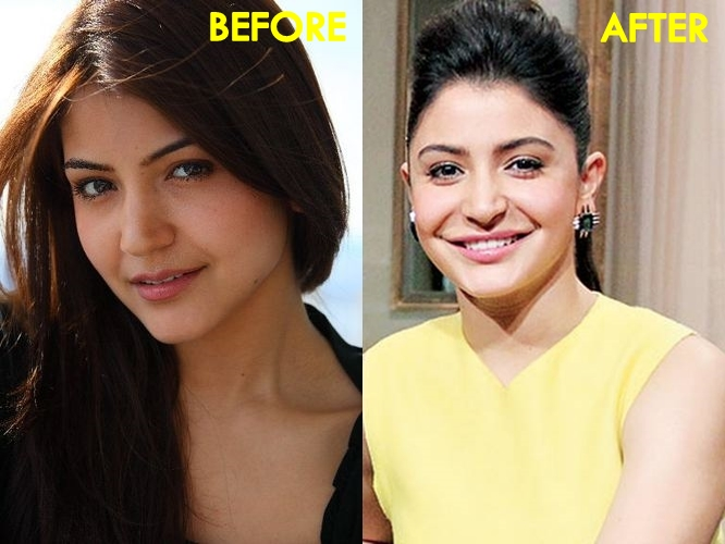 Anushka Sharma Lip Job