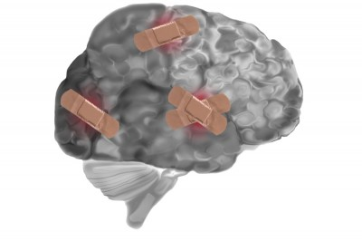 brain with bandages on it