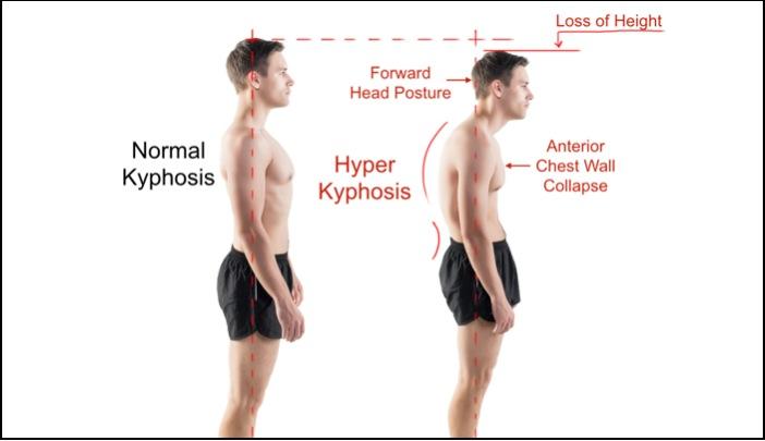 Kyphosis-Normal-vs-Hyper