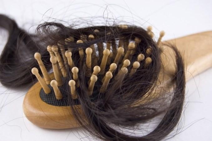 Rambut rontok dan cara mengatasinya