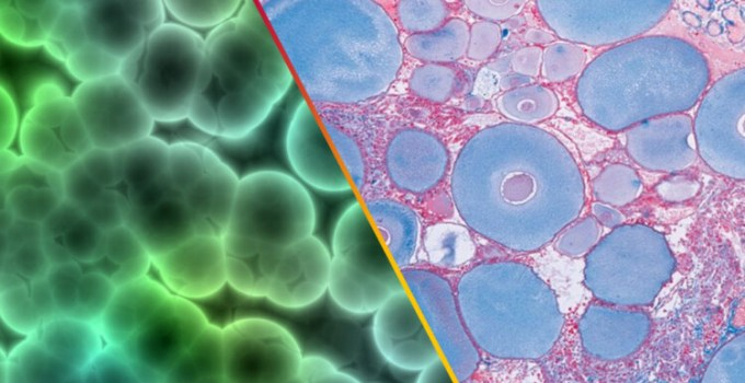 perbedaan sel tumbuhan dan sel hewan