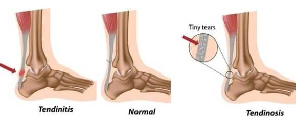 Depictions of Achilles tendinitis and tendinosis