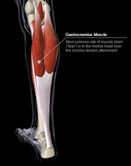 Common site of gastrocnemius strain tear