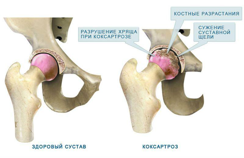 Массаж при некрозе тазобедренного сустава упражнения новорожденных при дисплазии тазобедренных суставов