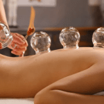 Cupping therapy well being and pain release