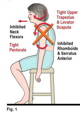 Massage provides relief for Upper Crossed Syndrome symptoms.