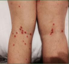picutre of bed bug bites