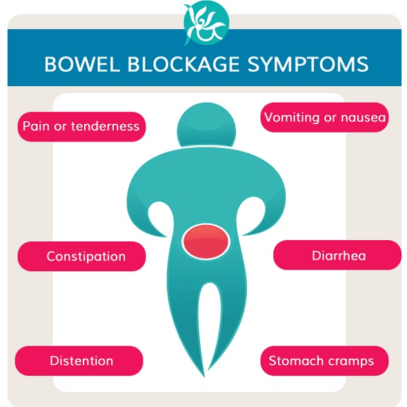 Bowel Obstruction Symptoms, Treatment, and Causes