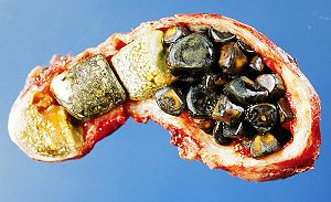 Opened gall bladder containing numerous gallstones