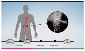 人工心肺の腎機能に与える影響