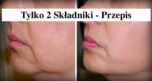 Nigdy więcej zwiotczającej skóry  – tylko 2 składniki