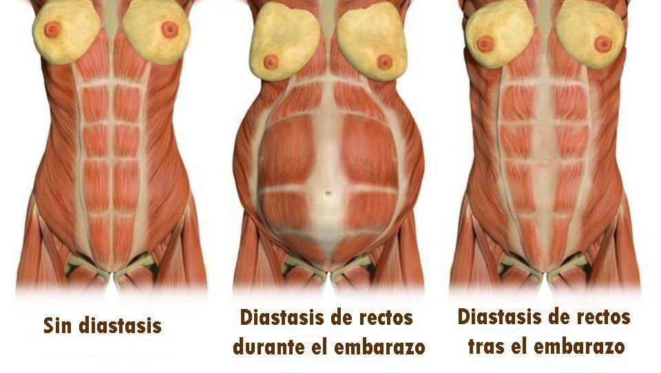 diastasis-abdominal-rectos
