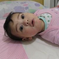 Minha filha tem dermatite atópica (e o que aprendi com isso)
