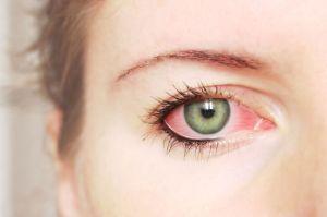 ojos-rojos-embarazo