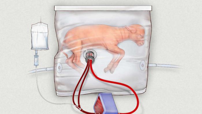 Útero artificial: Una nueva esperanza para bebés prematuros