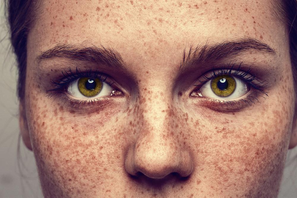 Tipos de manchas en la piel. Todo lo que deberías conocer. I
