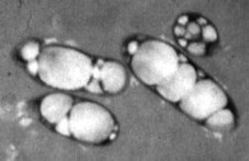 Electron microscopic image of microorganisms containing PHA