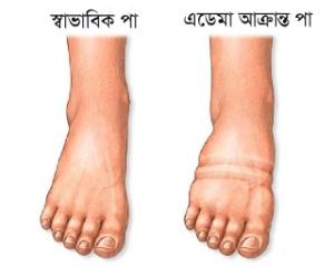 edema-affected-feet