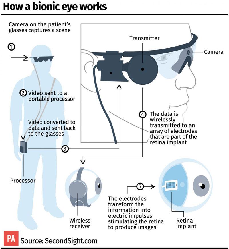 Robotic Contact Lenses