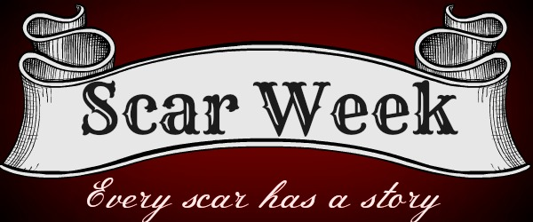 Scar Week