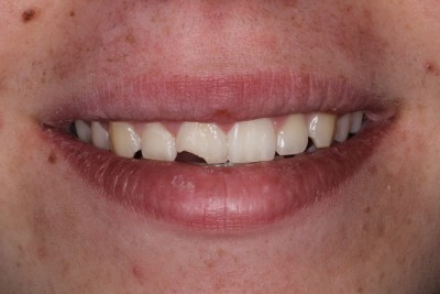 Before Esthetic (Composite) bonding