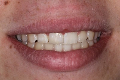 After Esthetic (Composite) Bonding